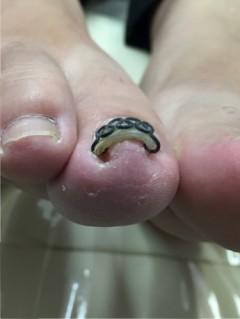 巻き爪手術