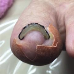 巻き爪矯正ツメフラ