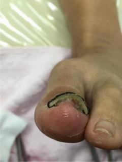 コットン巻き爪
