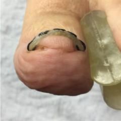 巻き爪矯正『ツメフラ法』