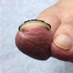 巻き爪ツメフラ