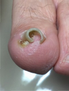 巻き爪病院