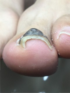 VHO巻き爪