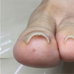巻き爪矯正「ツメフラ法」